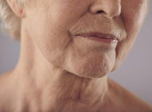 wrinkles, turkey neck Before