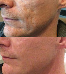 Bellafill, acne scars, acne scar treatment, Inland Empire, Dr. Brian Machida