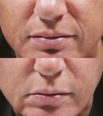 Bellafill, nasolabial folds, marionette lines, filler, cheek filler, Inland Empire, CA