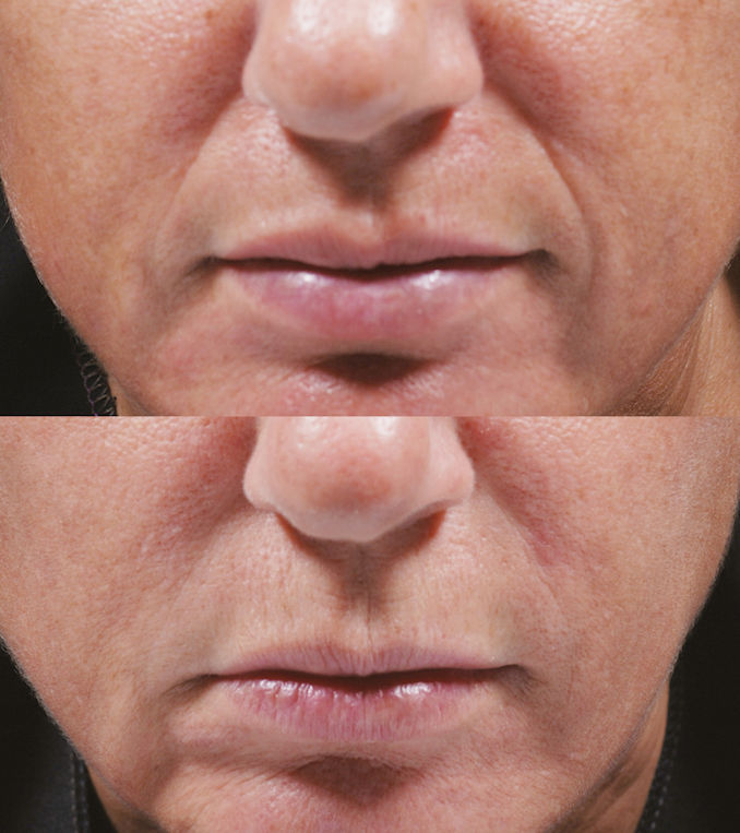 Bellafill wrinkles Inland Empire, nasolabial folds, marionette lines, filler, cheek filler