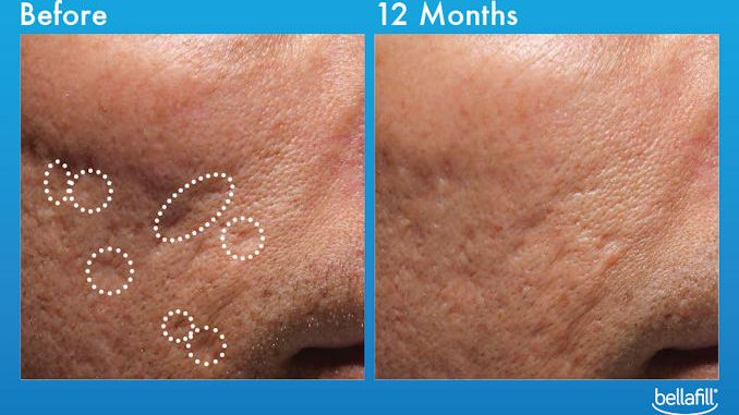 Bellafill acne scar treatment offered by Dr. Brian Machida, facial plastic surgeon, Inland Empire, CA, Before and After