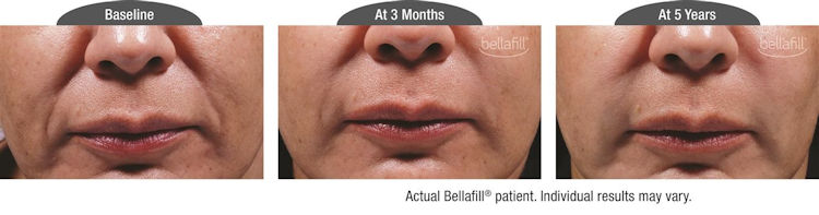 jowls Inland Empire,Bellafill, filler, nasolabial folds, Before and After photos, Inland Empire, CA