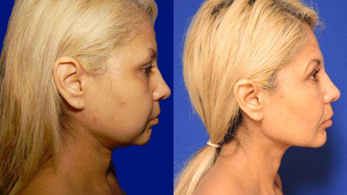 Ciria Before & After – Dr. William Seare