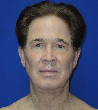 Male, 71 After Renuvion J-Plasma Dr. William Seare