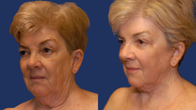 Woman 65 Before and After Renuvion J-Plasma by Dr. William Seare, plastic surgeon, San Diego, CA