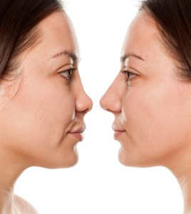 Non surgical nose job, Inland Empire, liquid rhinoplasty, Dr. Brian Machida, facial plastic surgeon