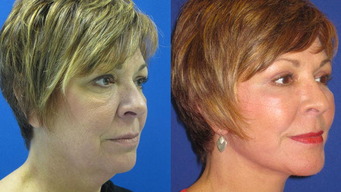 facelift Cleveland, face lift Cleveland by Dr. Ritu Malhotra, Before and After photo