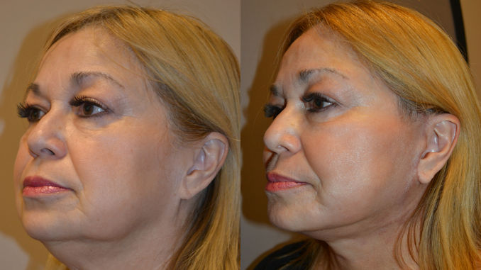 neck fat, neck fat Inland Empire, jowls inland empire, neck lift, Before and After photo, facelift by Dr. Brian Machida