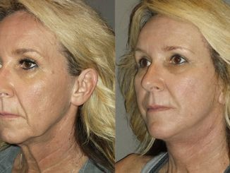 neck lift Inland Empire, necklift Inland Empire, Dr. Brian Machida, STC Plastic Surgery