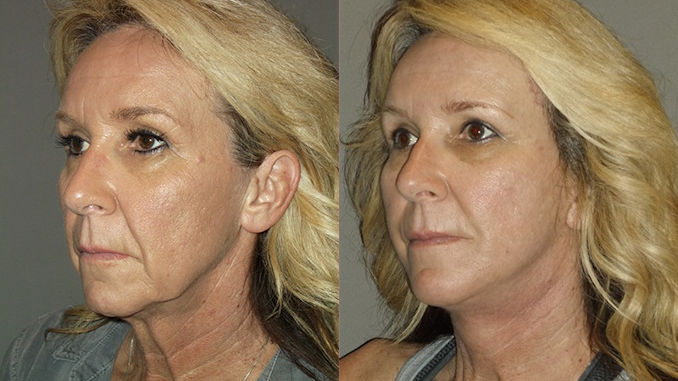 turkey neck, turkey neck Inland Empire, neck lift Inland Empire, necklift Inland Empire, Dr. Brian Machida, STC Plastic Surgery