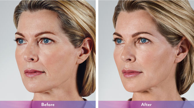 Juvederm Inland Empire, Voluma, Juvederm Voluma