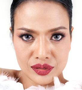 Nasolabial folds, Nasolabial folds inland empire, Bellafill, Juvederm, Radiesse