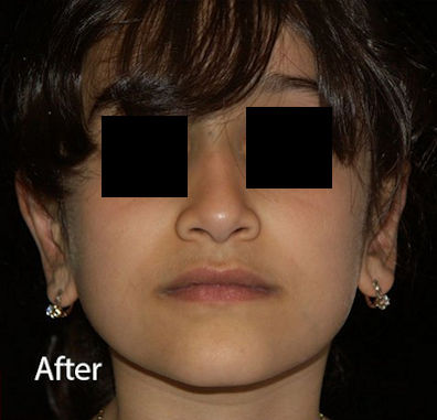 Ear-After-Ear-Reshaping-Otoplasty-2-by-Dr.-Mitchell-Blum-facial-plastic-surgeon-San-Francisco-CA