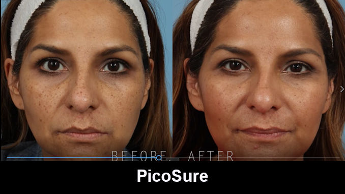 PicoSure, brown spots, Inland Empire, Before and After, Dr. Brian Machida,