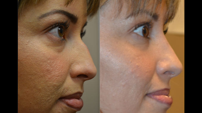 rhinoplasty Inland Empire, nose job Inland Empire, Dr Brian Machida