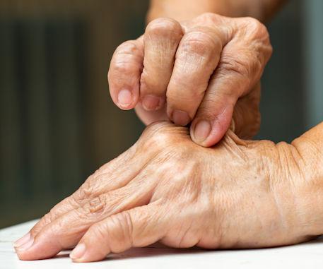 Pinch loose skin – hand-iStock-1159377189