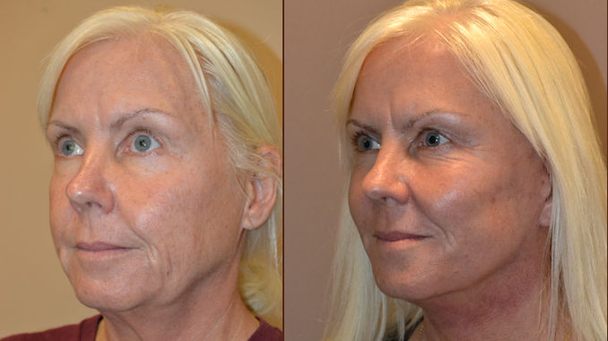 facelift before and after, how long does facelift last, Inland Empire, Dr. Brian Machida