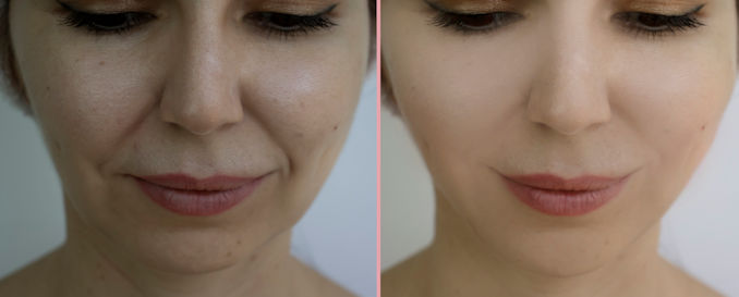 nasolabial folds, facelift before and after, facelift Inland Empire