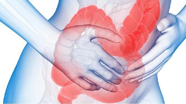 Image result for Irritable bowel Syndrome (IBS)