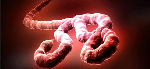 Muere doctor dedicado a combatir Ébola