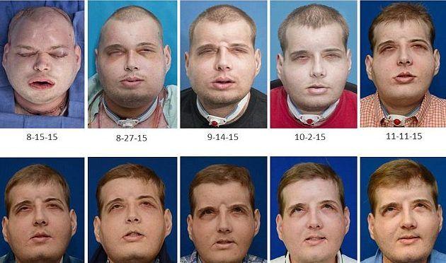 Video: bombero recibe rostro en el trasplante facial más largo de la historia