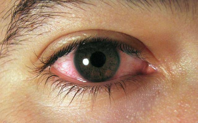 Aumentan daños oculares por exposición prolongada a las pantallas - Foto de siéntete bien