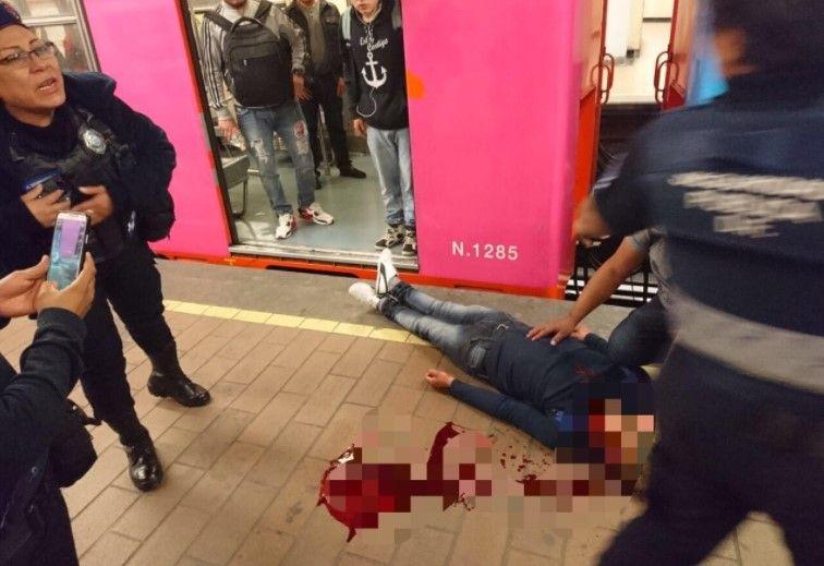 Convoy del Metro golpea a usuario y le abre la cabeza - Foto: @MrElDiablo8.
