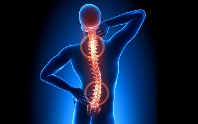 ¿Qué es la higiene en la columna vertebral? - Foto de internet