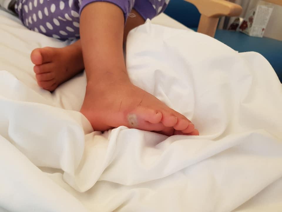 Niña adquiere infección por probarse zapatos sin calcetines - Foto de Facebook