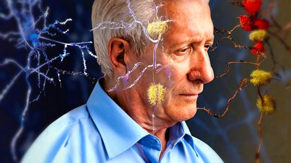 Científicos logran promisorios avances en la lucha contra el Alzheimer - Foto de El Heraldo