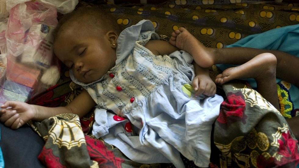 Alerta Unicef por aumento descontrolado de casos de sarampión - Bebé infectada de sarampión. Foto de Unicef