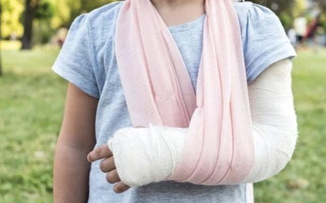 Fractura de brazo, la principal lesión en vacaciones - Foto de Family Doctor
