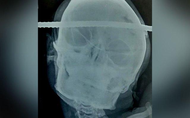 #Video Sobrevive hombre que cae a pozo y una varilla le atraviesa la cabeza - Foto de India Photo Agency