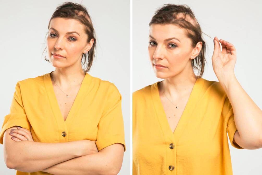 novia pelo estrés alopecia