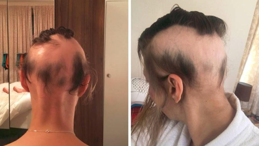 Novia pierde casi todo su pelo por planificar su boda