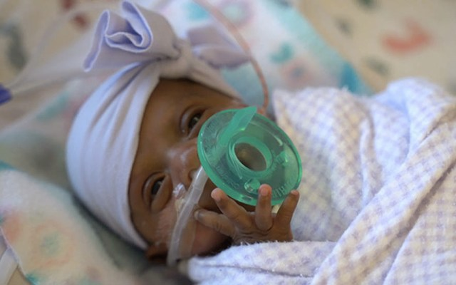 Nace en Estados Unidos el bebé más pequeño del mundo - Bebé más pequeño del mundo Estados Unidos Saybie 2