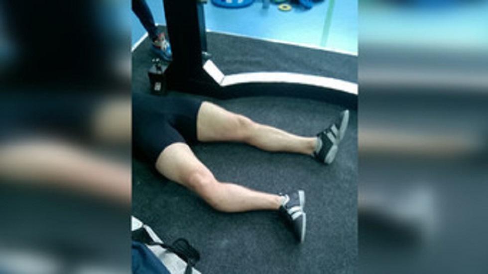 Fractura de pierna. Foto de Amur Info