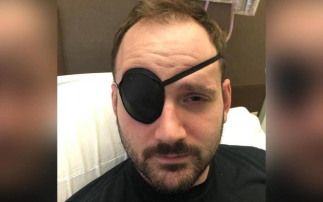 Hombre sufre derrame cerebral por tronarse el cuello - hombre sufre derrame cerebral por tronarse el cuello