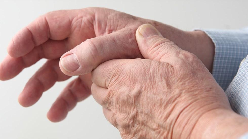 Descubren medicamento que logra frenar la artrosis - Artrosis
