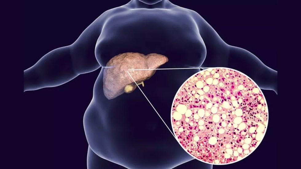 Control de obesidad fundamental para evitar hígado graso: IMSS - hígado graso