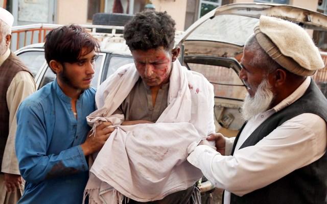 Atentado en mezquita de Afganistán deja 63 muertos - Herido en atentado contra mezquita en Afganistán. Foto de EFE