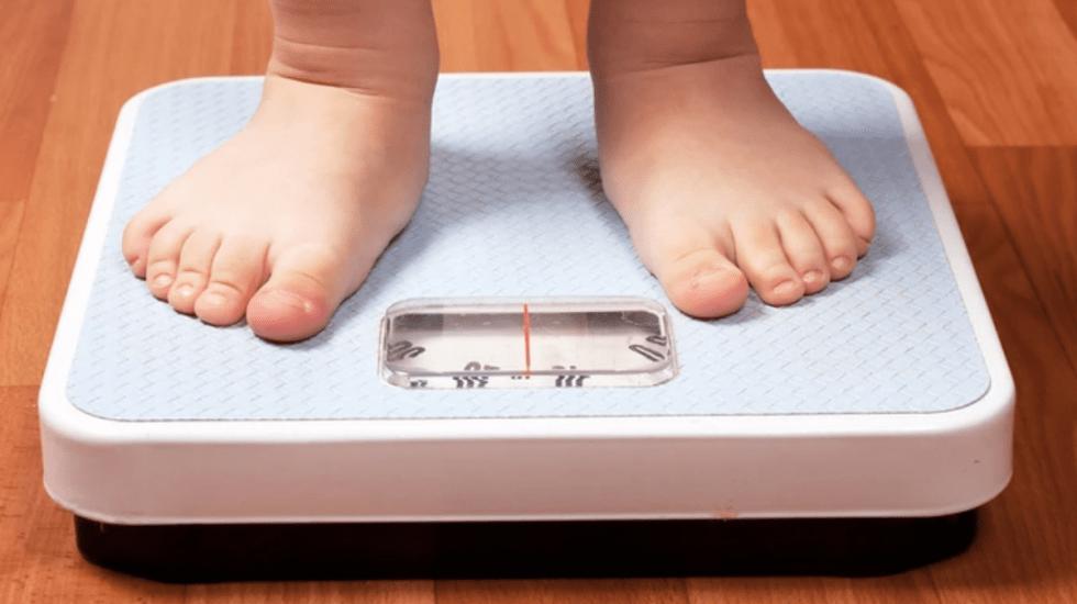 Alerta Unicef por desnutrición y obesidad infantil en México - Obesidad infantil. Foto de Archivo