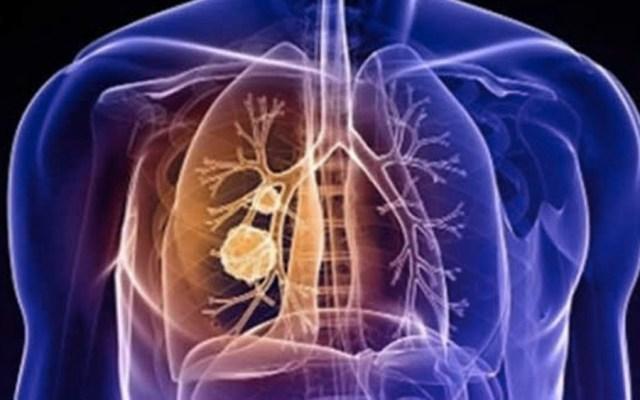 Combinación de fármacos es eficaz en ratones contra cáncer por amianto - Combinación de fármacos es eficaz en ratones contra cáncer por amianto