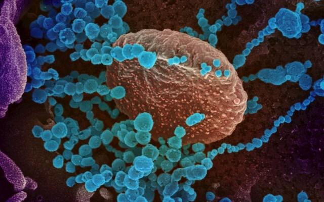 Personal de EE.UU. que visitó zonas en cuarentena por Covid-19 no estaba preparado - Coronavirus Covid-19 imagen células