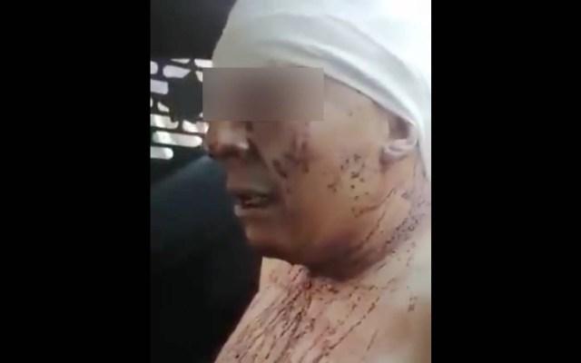 Vinculan a proceso a presunto feminicida de Ingrid Escamilla - Gustavo A. Madero acusado feminicidio