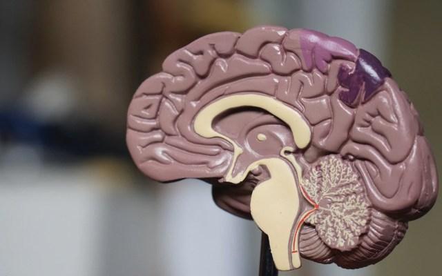 """Alertan por contagio de ameba """"comecerebros"""" en Florida - cerebro"""