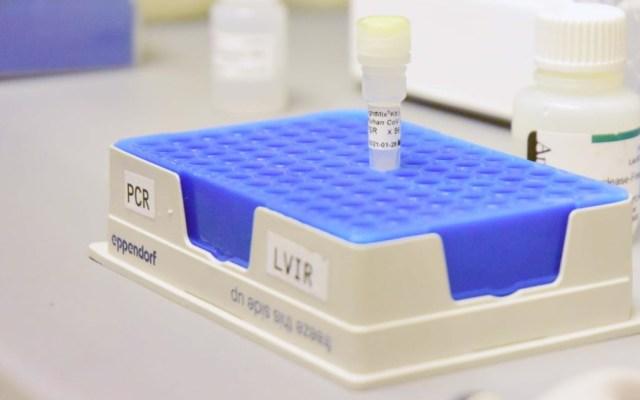 UNAM pone a disposición de la comunidad prueba de COVID-19 - Prueba coronavirus COVID-19 Salud México