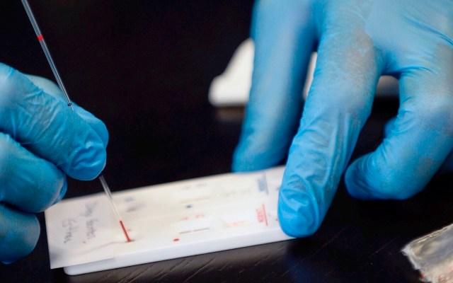 Anticuerpos de paciente recuperado de SARS inhiben el COVID-19, según científicos - Anticuerpos SARS coronavirus COVID-19