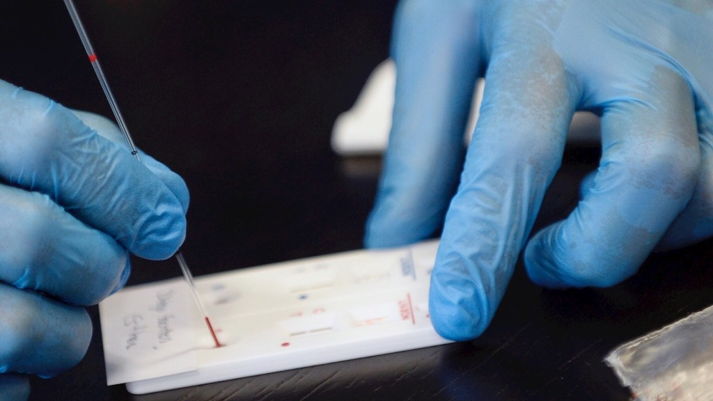 Cofepris aprueba cuatro pruebas serológicas, suman siete - Prueba test COVID-19 coronavirus