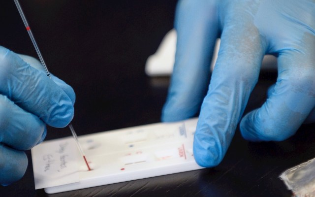 Cofepris aprueba tres pruebas serológicas para COVID-19 - Prueba test COVID-19 coronavirus